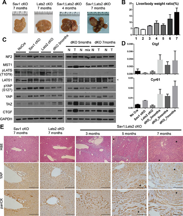Ablation of negative feedback on YAP accelerates the YAP activity-induced mouse liver phenotype.