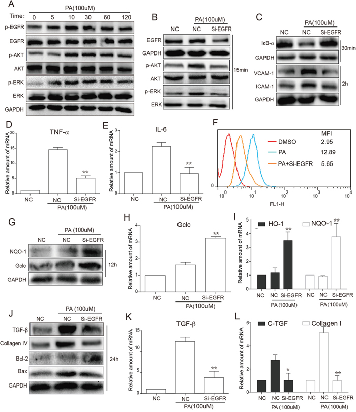 EGFR silencing inhibited PA-induced activation of EGFR signaling, inflammation, oxidation and fibrosis in NRK-52E cells.