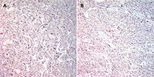 PNMT immunostaining in specimens from patient 7.