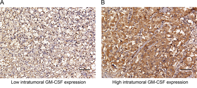 Representative photographs of intratumoral GM-CSF expression by immunostaining in clinically localized ccRCC.