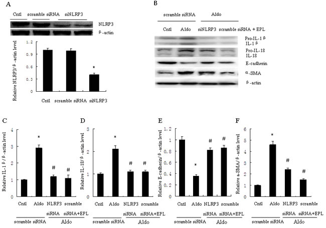 Transfection with siNLRP3 or treatment with EPL inhibits Aldo-induced NLRP3 inflammasome and phenotypic alternation in HK-2 cells.