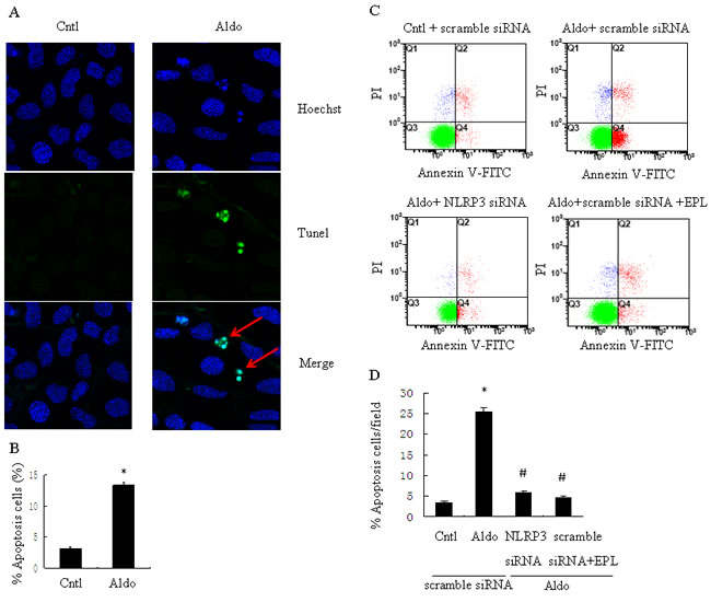 siNLRP3 and EPL inhibit Aldo-induced apoptosis in HK-2 cells.