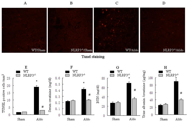 Knockout of NLRP3 ameliorates Aldo-induced tubular epithelial cell apoptosis and renal function in mice treated with Aldo-infusion.