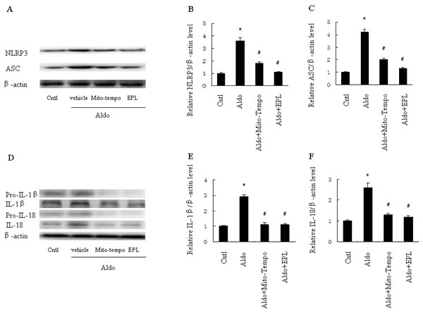 Treatment with Mito-Tempo or EPL inhibited Aldo-induced activation of the NLRP3 inflammasome in HK-2 cells.