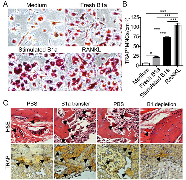 RANKL-expressing B1a cells promote osteoclastogenesis both