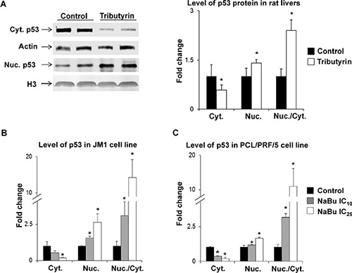 Subcellular localization of p53 protein in preneoplastic livers in rats undergoing hepatocarcinogenesis and in HCC cell lines.