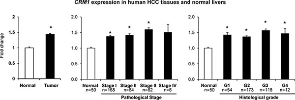 Expression of the CRM1 gene in human HCC samples.
