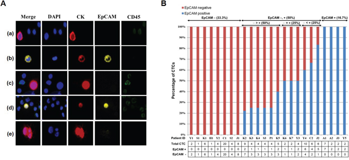 Isolation of CTCs from metastatic breast cancer patients using the p-MOFF chip.