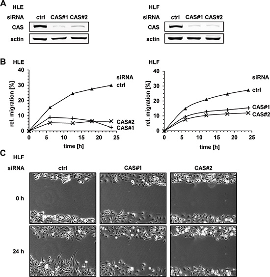 CAS is essential for migration of HCC cells in vitro.