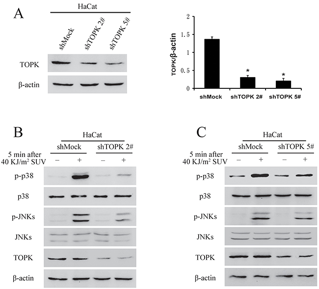 Knock down TOPK inhibits SUV-induced the phosphorylation of p38 and JNKs.