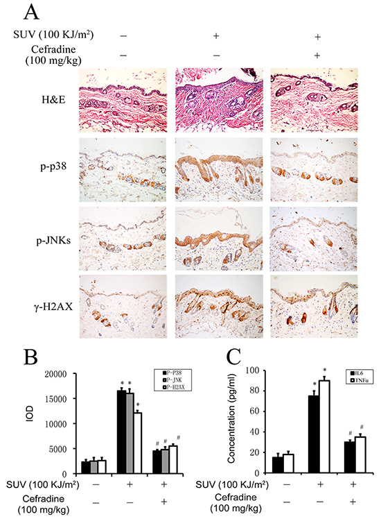 Cefradine inhibits inflammation induced by SUV irradiation in mouse skin.