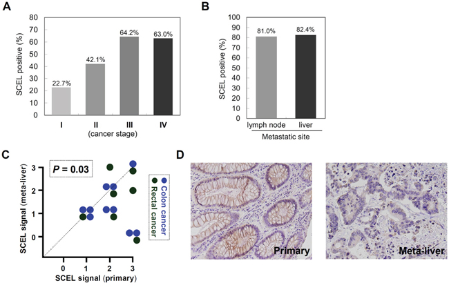 SCEL differentially expressed in primary colorectal cancer and metastatic liver.