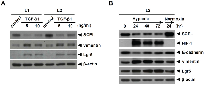 TGF-β1 and hypoxia inhibit SCEL expression.