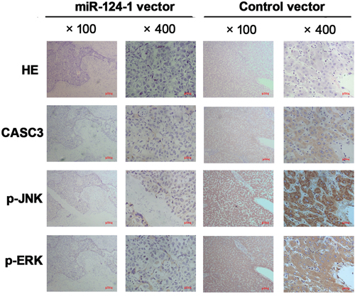 Immunohistochemistry was performed on HCC tissues from orthotopical implantation models of miR-124-1 vector and control vector transfected MHCC-LM3 cells for CASC3, p-JNK, and p-ERK.