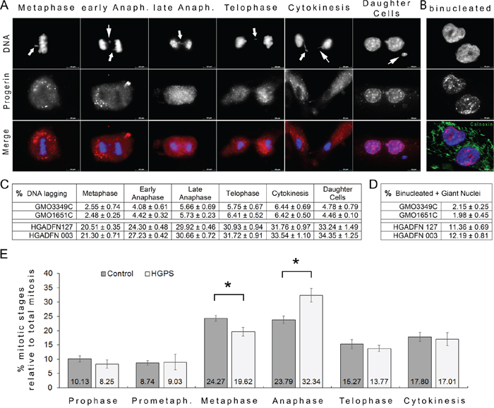 Frequent chromatin lagging occurred in mitotic HGPS cells.