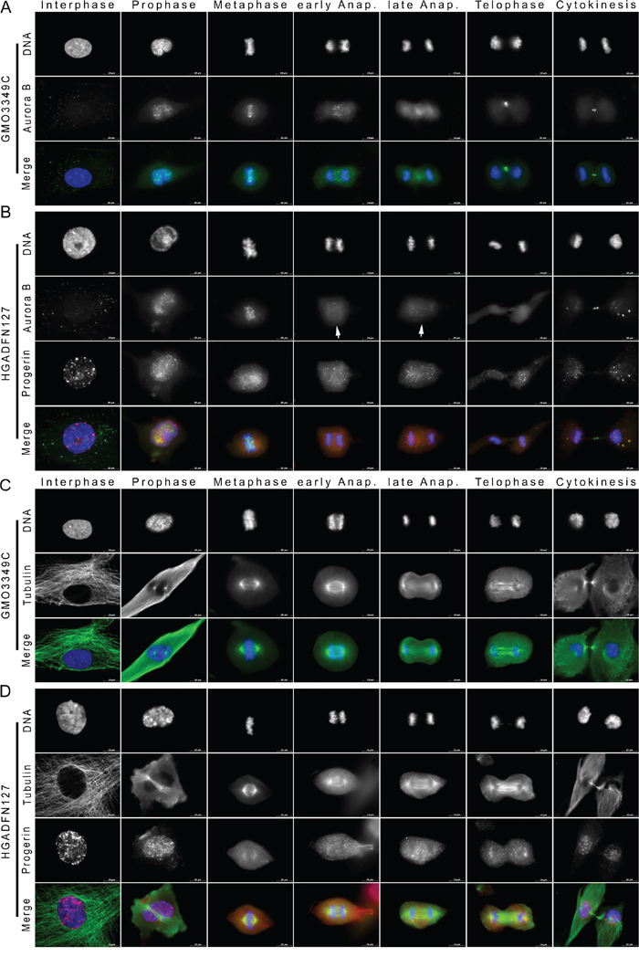 Aurora kinase B distribution is altered in mitotic HGPS cells.
