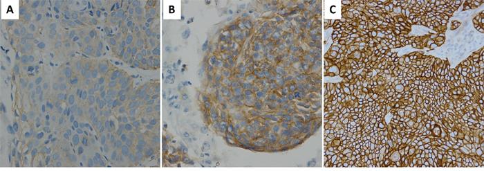 EGFR IHC staining in ESCC.