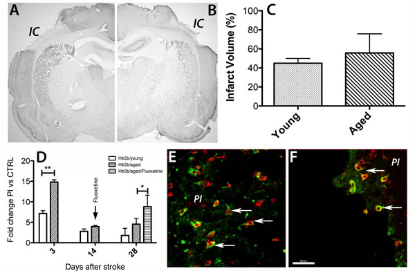 Age-specific post-stroke up-regulation of Htr2B mRNA in the peri-infarct area of rats.