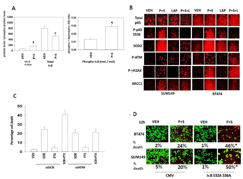 Inhibition of NFκB signaling prevents induction of SOD2 expression and enhances tumor cell killing by [Pemetrexed and Sorafenib]; [Pemetrexed + Sorafenib] causes a prolonged activation of ATM which promotes tumor cell killing.