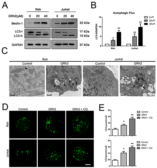 20(S)-GRh2 induces autophagy in ALL cells.