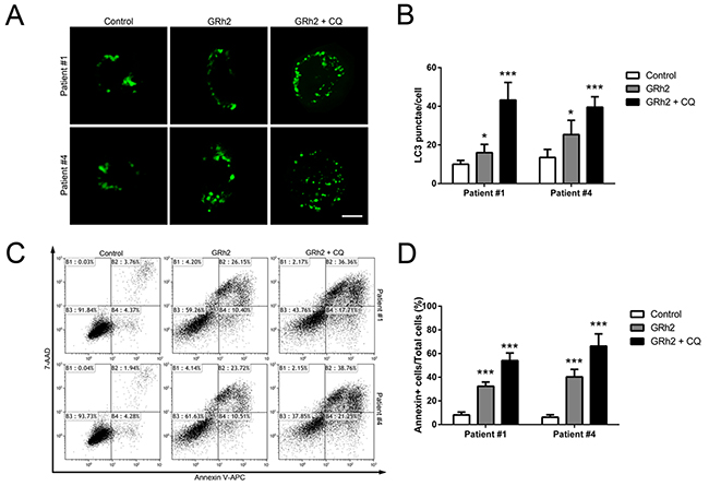 Autophagy plays a protective role in 20(S)-GRh2-induced apoptosis in human primary ALL cells.