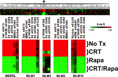 mTOR signaling in HPV+ OPSCC recurrent/metastatic disease.