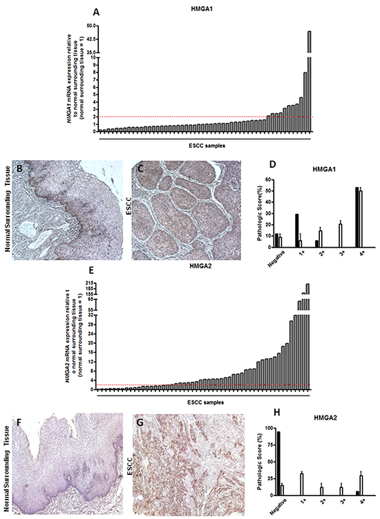 HMGA1 and HMGA2 mRNA and protein expression pattern in esophageal squamous cell carcinomas (ESCC).