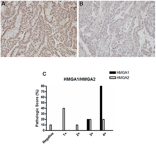 HMGA1 and HMGA2 protein expression pattern in esophageal adenocarcinoma (EAC) samples.
