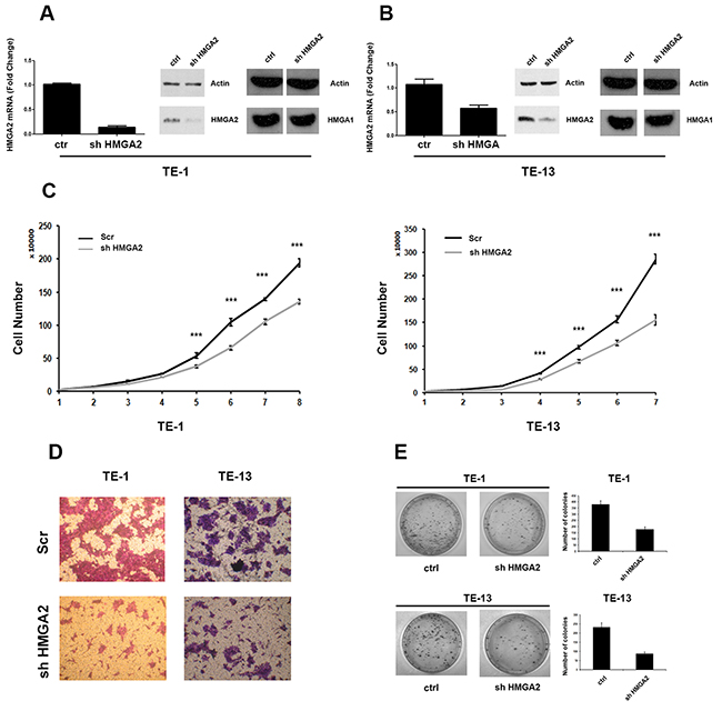 HMGA2 silencing inhibits TE-1 and TE-13 cells growth and migration.