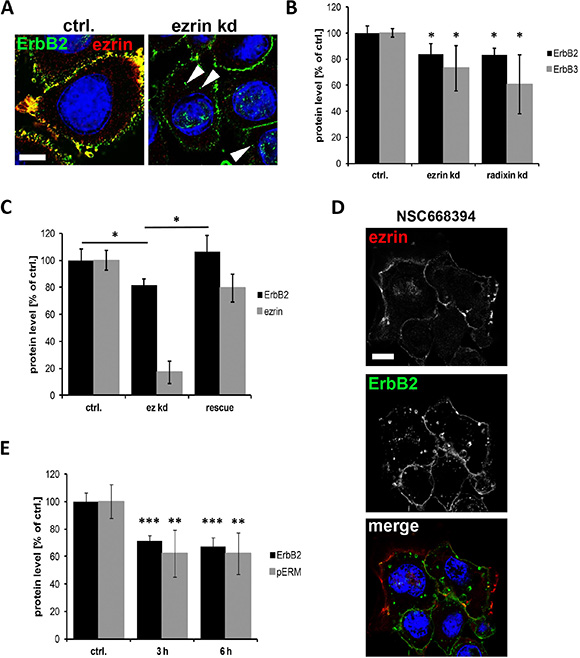 Internalization and degradation of ErbB receptors after interference with ERM proteins.