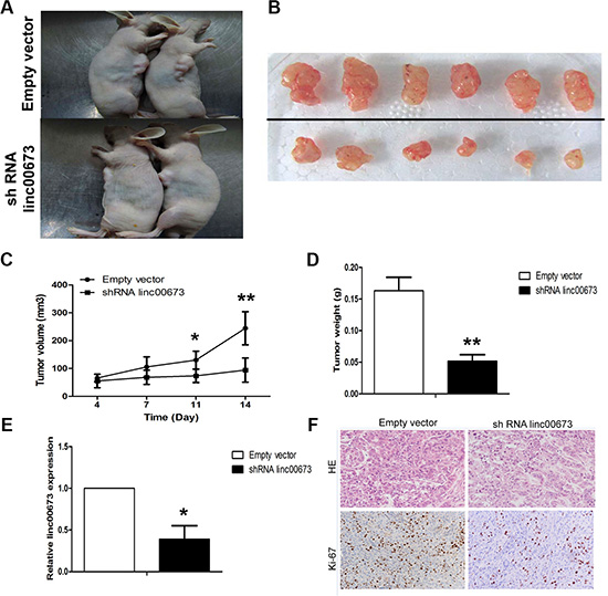 The effects on tumor growth after linc00673 downregulation in vivo.