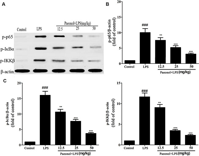 Effects of paeonol on the activation of the NF-κB signalling pathway in LPS-induced AKI.