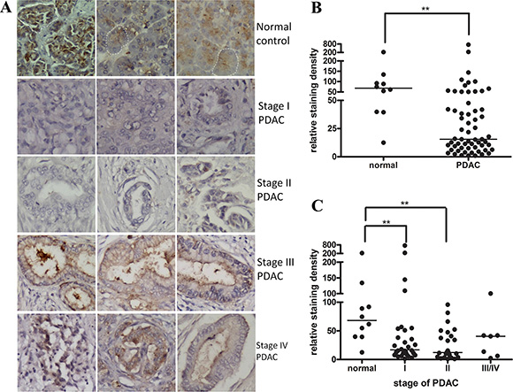 Netrin-1 expression is decreased in early-stage PDAC samples.