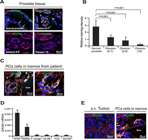 Bone marrow microenvironment activates endogenous GAS6 expression in PCa cells.