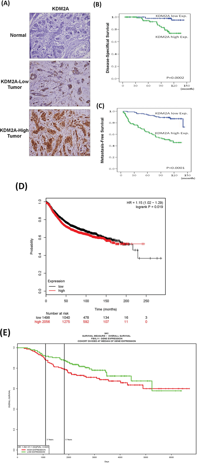 High expression of KDM2A is associated short survival of breast cancer patients.