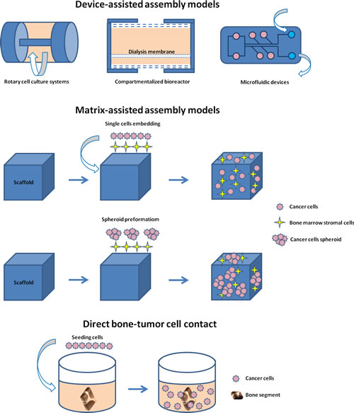 Schematic representation of the different 3D models of bone metastasis emerging from this review: device-assisted assembly models, matrix-assisted assembly models and direct bone-tumor cell contact models.