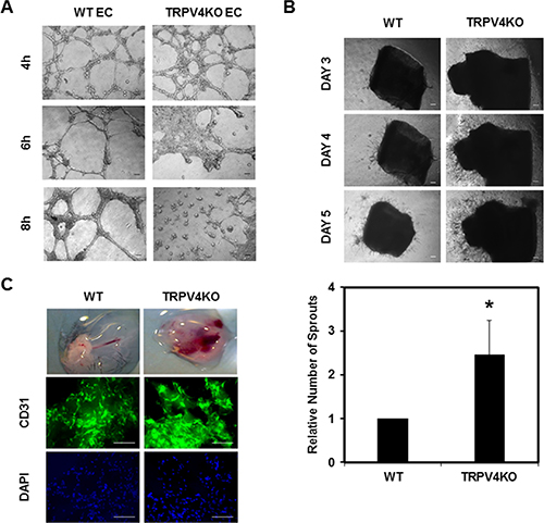 Absence of TRPV4 induces abnormal angiogenesis in vitro, ex vivo, and in vivo.
