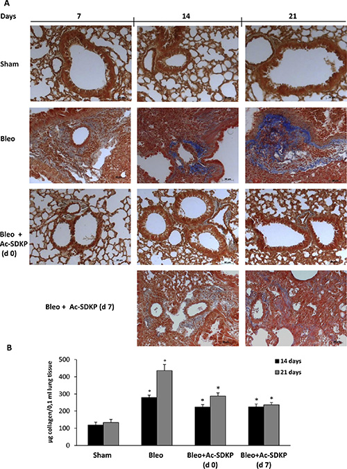 Effects of Ac-SDKP treatment on BLEO-induced increase in collagen deposition in mouse lung tissue.