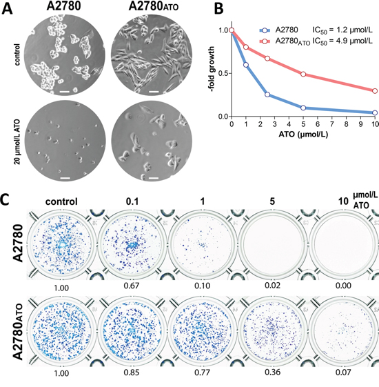 Morphology and impact of ATO on cell viability of A2780 and A2780ATO.
