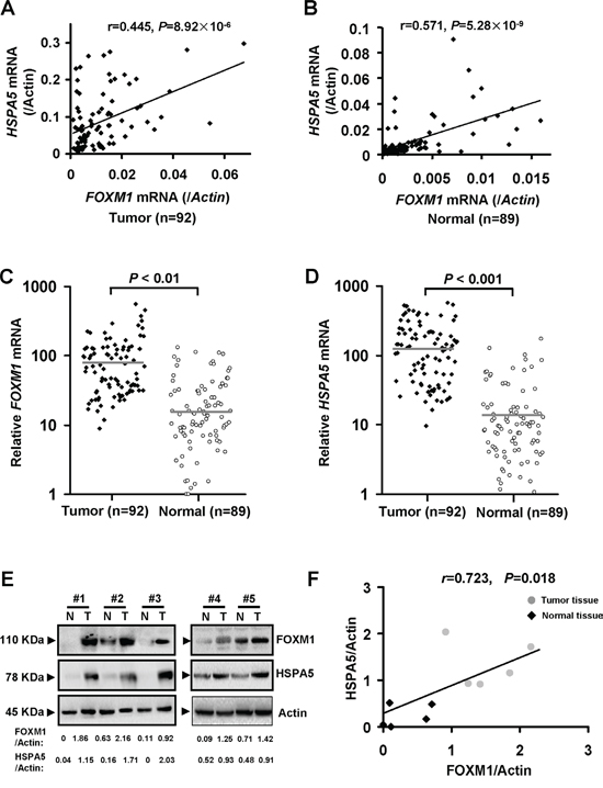 FOXM1 mRNA expression is elevated in most colorectal cancer tissues and positively correlated with HSPA5.