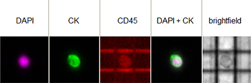 Image of a single CTC isolated from one patient as it appears in the image gallery of the DEPArray™ instrument.