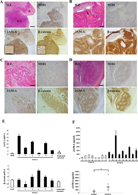 Images of H.E. and immunohistochemical staining of MIB1, JAM-A and β-catenin in tissues of HNSCC patients and dysplastic regions.