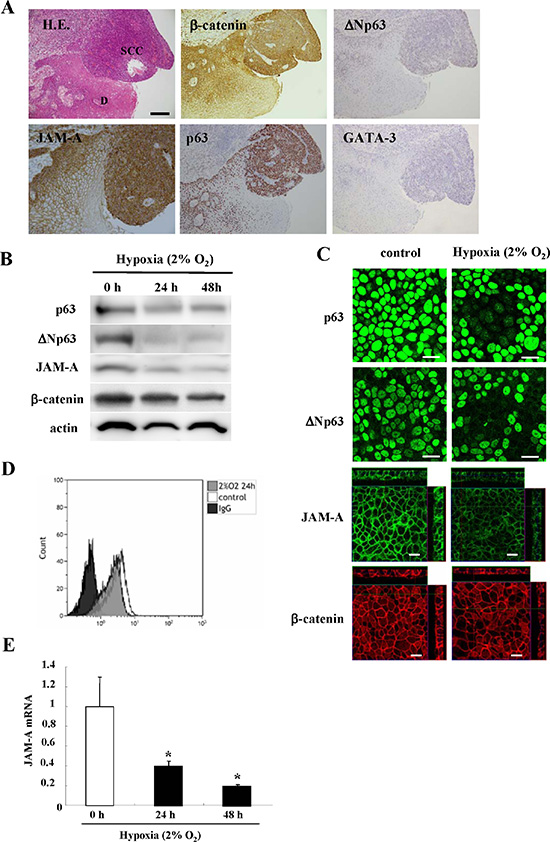 Images of H.E. and immunohistochemical staining (A) of JAM-A, β-catenin, p63, ΔNp63 and GATA-3 in HNSCC and dysplastic regions.