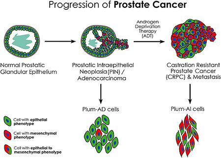 Schematic model showing phenotypic progression of PC from primary adenocarcinoma to CRPC following ADT.
