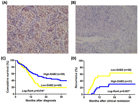 The DAB2 protein of ESCC can be correlated to survival and tumor recurrence rate.
