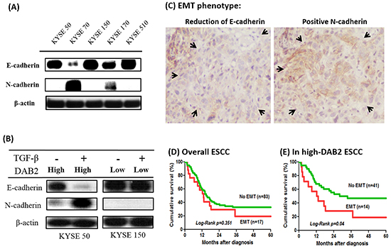 The high-DAB2 esophageal cancer cell had the presence of epithelial-mesenchymal transition (EMT).
