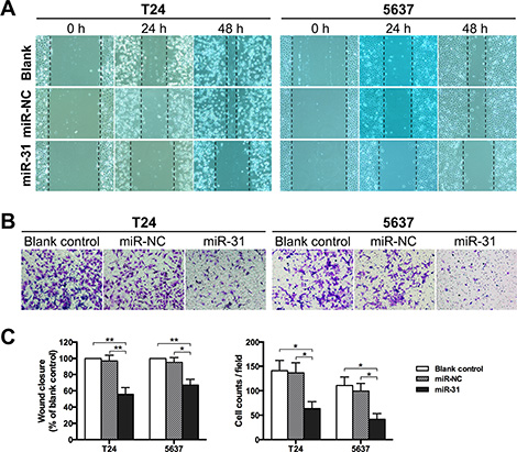 MiR-31 inhibits migration and invasion of UBC cells.