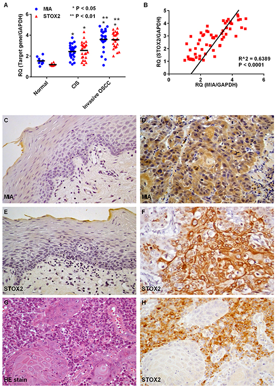 Expression of MIA and STOX2 in human OSCC cases.