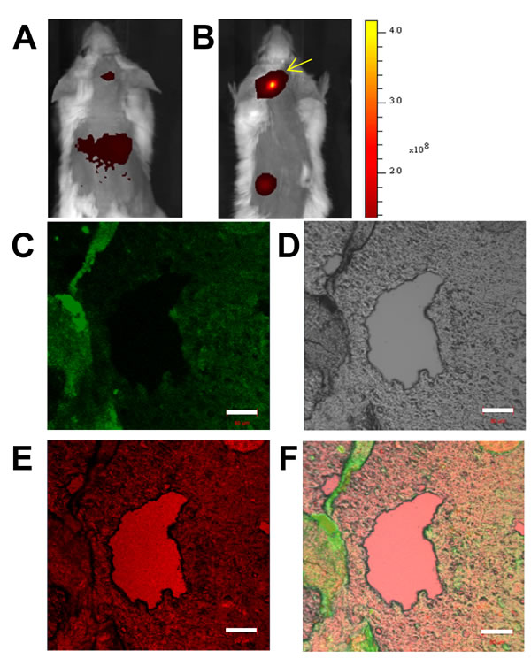 Immuno-histochemical imaging and analysis of RPMI8226 cell-derived xenotransplants.