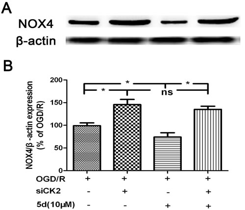 CK2 negatively modulates the expression of NOX4 protein.